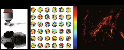 생체조직에서 일어나는 파면 왜곡 보정 기술